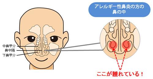 の 中 かさぶた 鼻